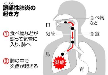 肺炎のイメージ映像